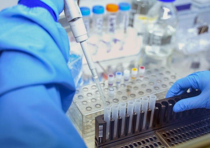 Traitement des coronavirus - Comment le prévenir?